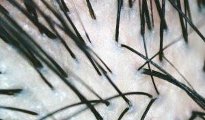 Anshin water/scalp care